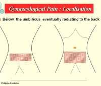 Pelvische pijn in Gynaecologie, infertiliteit, fertilteitschirurgie, endometriose, laparoscopische chirurgie, images
