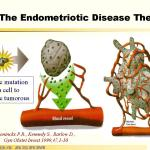 the endometriotic disease theory