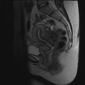 adenomyosis nodular