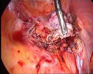 endometriosis:ovarian remnant