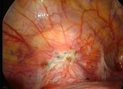 pain endometriose