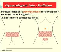 localisation of pain in endometriosis