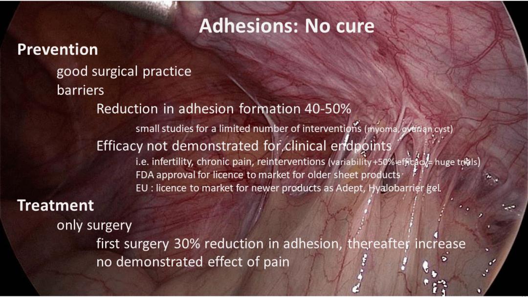 adhesions no cure