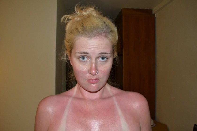 sunscreen-burn-fake-thailand-burnt-sun-samui-sunscreen-risk-knock-off
