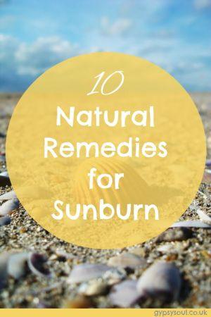 10 natural remedies for sunburn
