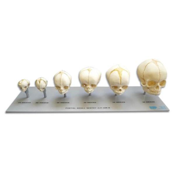 zjy426s-Foetal Skull Sextet