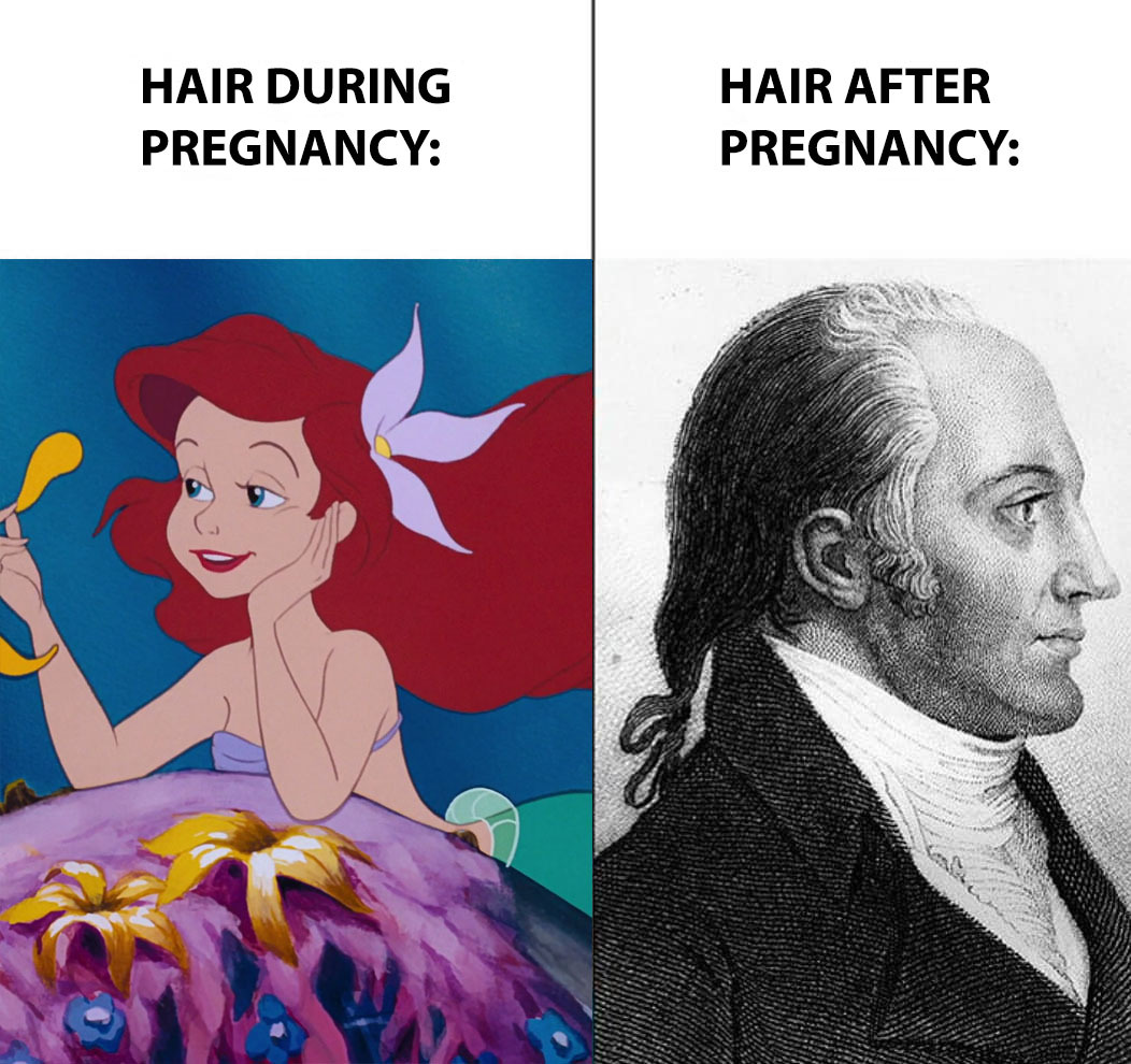 postpartum hair loss meme