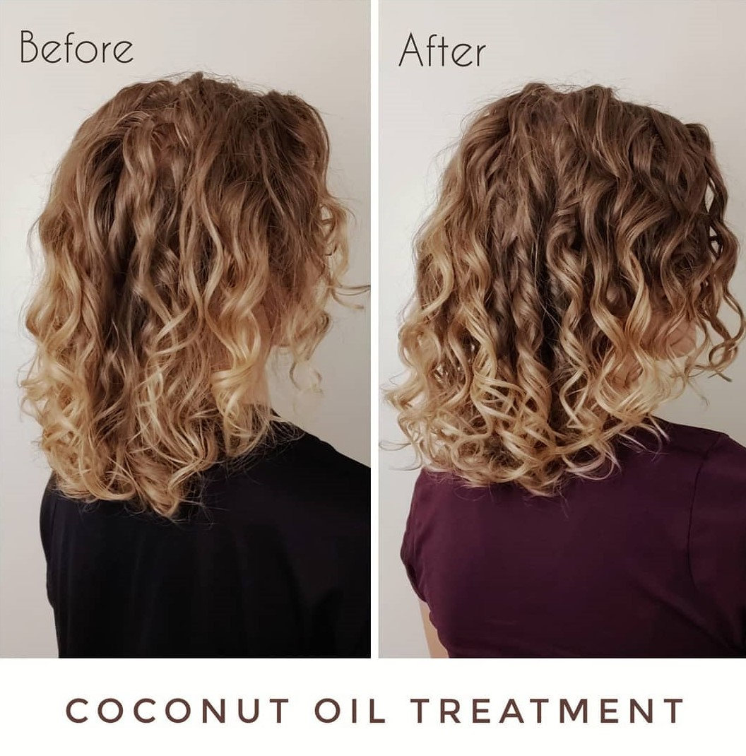 Coconut Oil Results Before After Picture