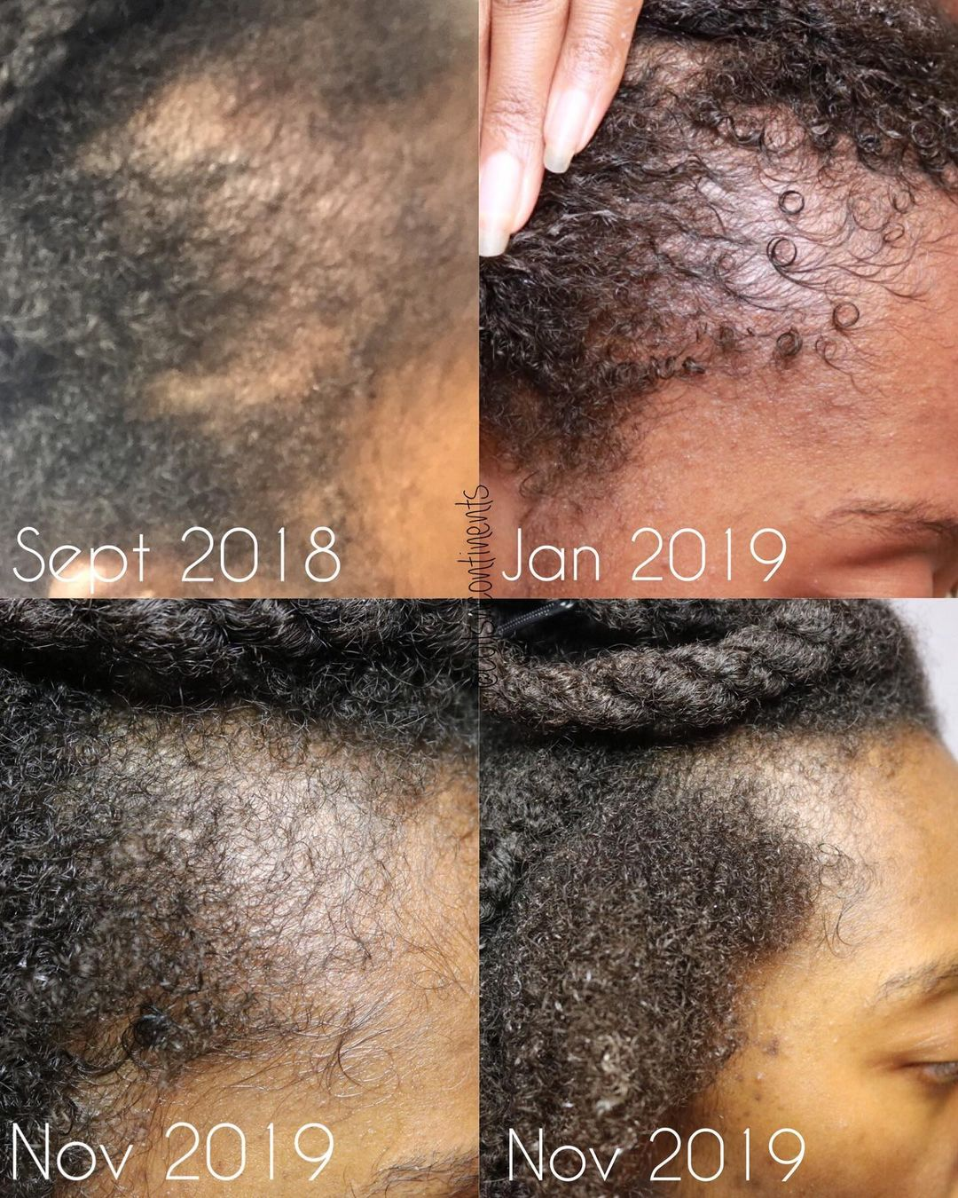 Onion Juice for Hair Loss Before After Photo