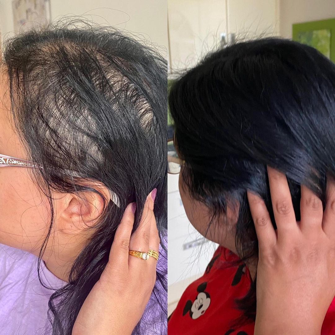 COVID Hair Loss Before After Photos