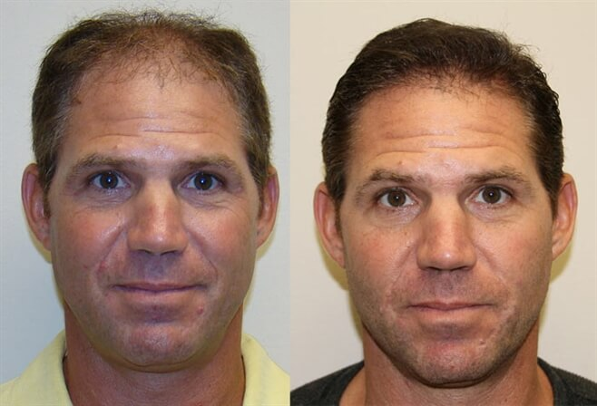 Haartransplantatie Voor En Na Fotos Hair Med