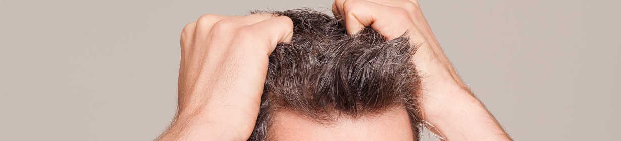 FUE hair restoration