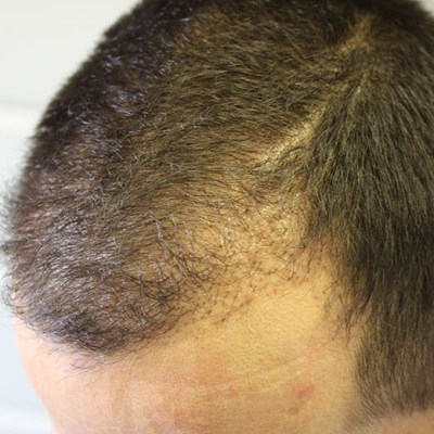 Post Hair Transplant 4 months4