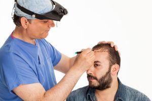 Hair loss surgery - Hair transplant for men