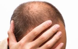 Baldness cure: Orally administered drugs and topically applied medication for hair loss