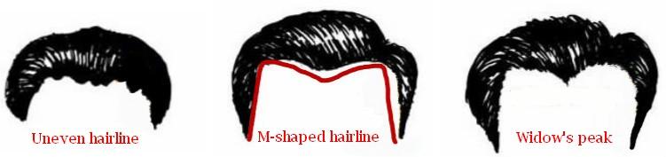 Men Receding Treatment Hairline