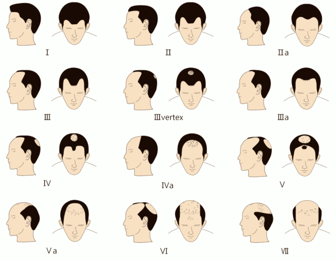 Norwood Scale Examples: NW2 mature hairline