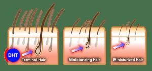 DHT hair loss
