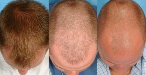 Hair loss causes - Male pattern baldness