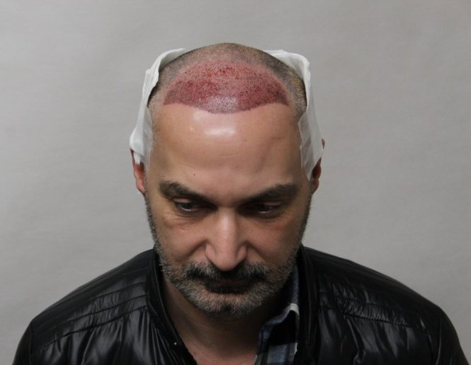 One day after hair transplant surgery in Budapest, Hungary