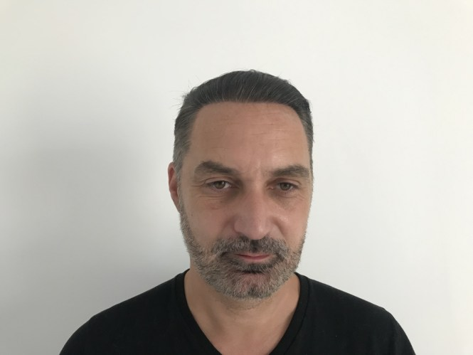 One year after hair restoration in Budapest, Hungary