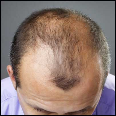 Coffeemalepatternbaldnesscure Custom Male Pattern Baldness Cure Discovered