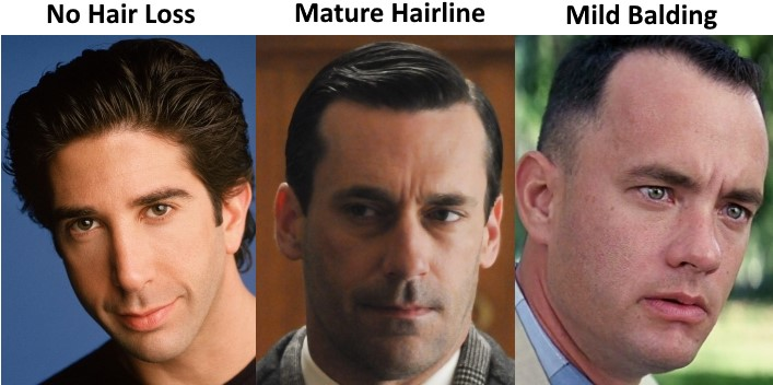The Mature Hairline Explained U2013 Are You Balding Or Maturing?