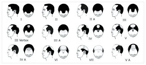 Mature hairline mistaken for baldness idea