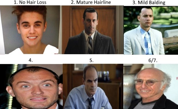 Norwood Scale - Assess Your Hair Loss With Pics & Celebrity Examples