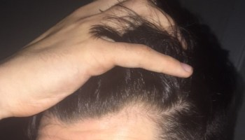 The Mature Hairline Explained - Are You Balding or Maturing?