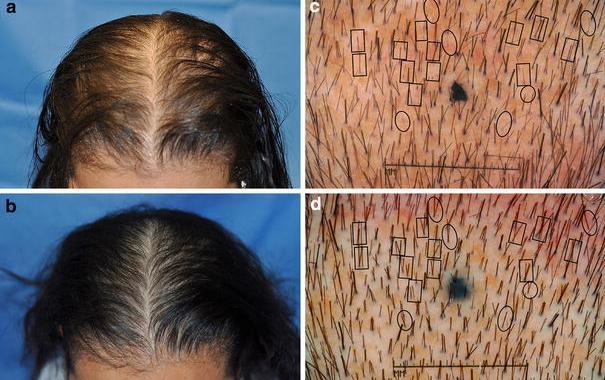 Tv Hair Growth Stimulation Laser B Brush From S