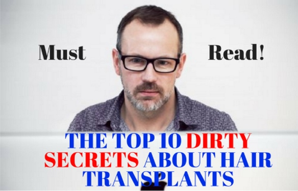 The Top 10 Dirty Secrets About Hair Transplants What Bad Surgeons