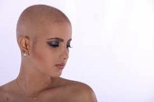 female hair loss at an all-time high