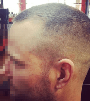 Receding Hairline Haircuts For Men At Hairmx Locations