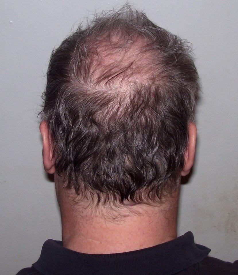 Hair Loss Causes Hair Transplant Center Houston Hair Transplant Dr Jezic