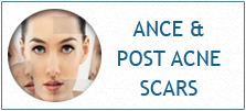 acne-and-post-acne-scar-treament-clinic-india
