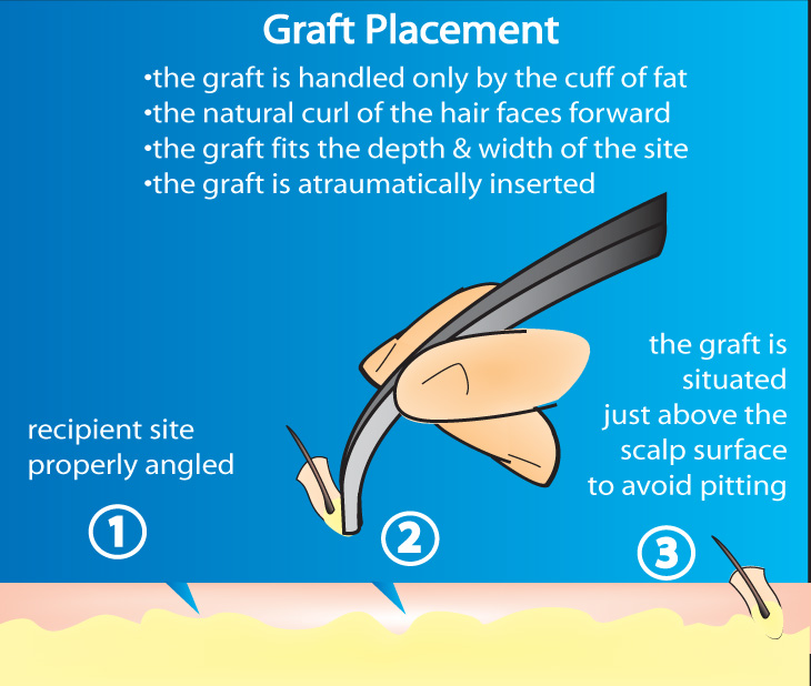 Hair Transplant Graft Placement Dallas Hair Restoration