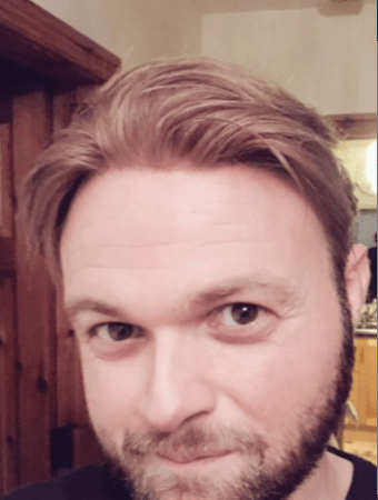 Darren Hair Replacement After
