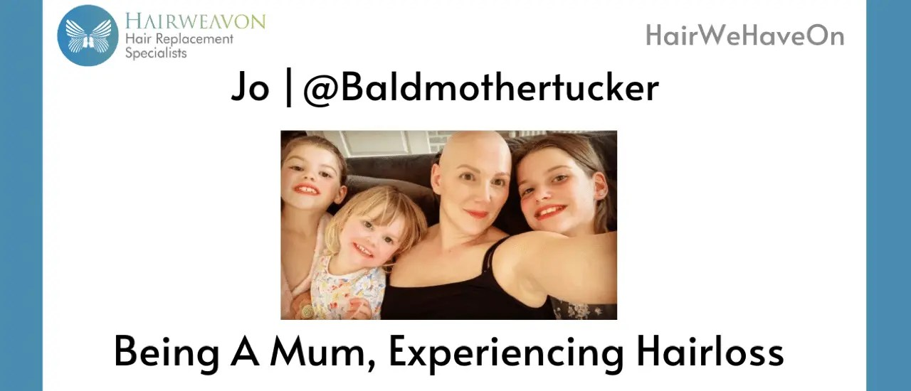Being A Mum Experiencing Hairloss | HairWeHaveOn