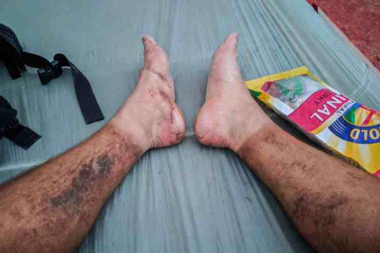 CDT Colorado Mac Feet Tent