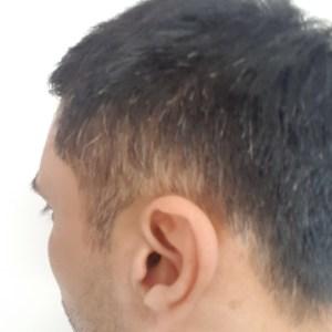 Black hair with grey hairs before dye