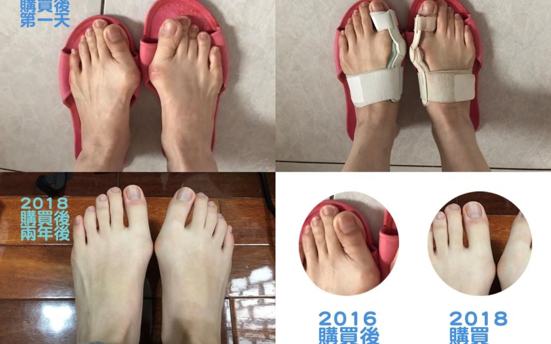 【新北市】陳小姐穿戴兩年心得分享