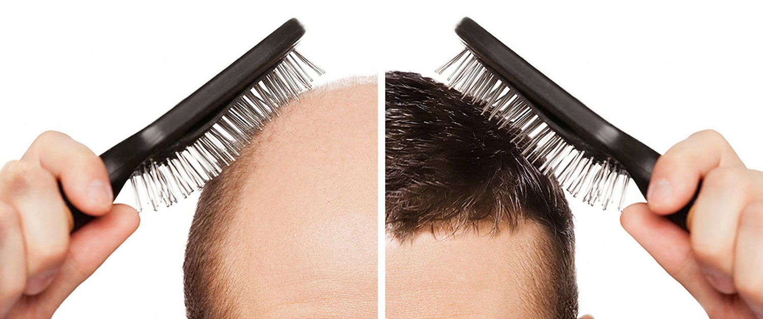 hair replacement system in pakistan