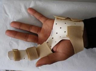 Fingerschiene bei Knopflochdeformität von volar
