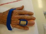 Fingerextensionsschiene nach der Behandlung mit Xiapex von dorsal