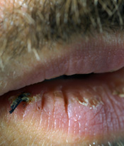 Image result for dried cracked lips male