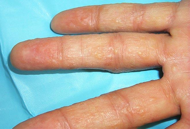 Eczema in hands - dyshidrotic eczema.