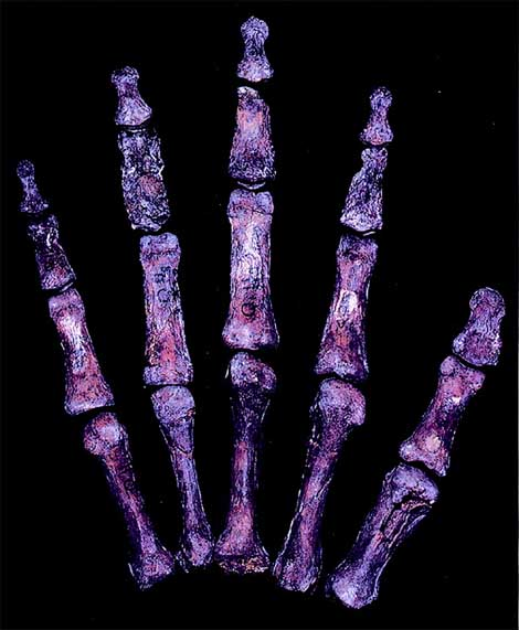 The rigth hand of 'Neanderthal Qafzeh 9'.