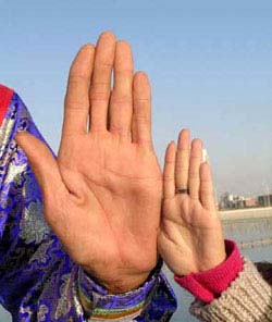 The left hand of Bao Xishun from China.