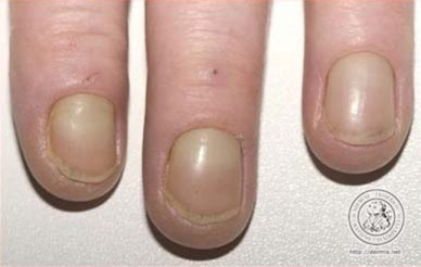 How To Make Nails White Again